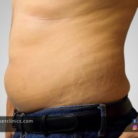 Get Rid of Stretch Marks and Cellulite with Acoustic Shockwave Treatments